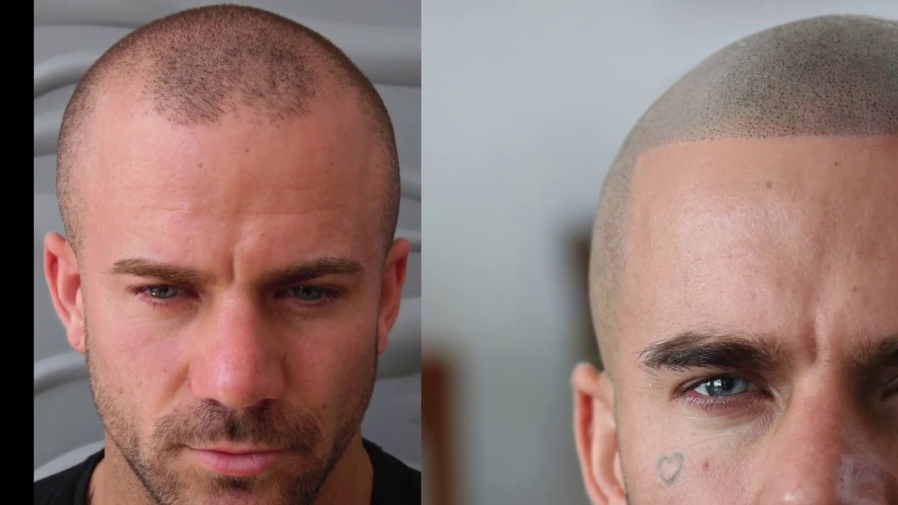 Scalp Micropigmentation Los Angeles: Awesome Facts To Know About